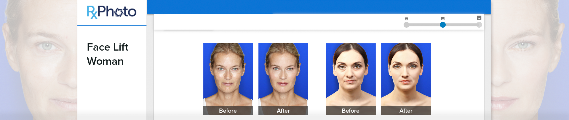 face lift woman before and after photography