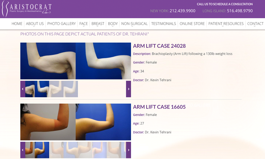 the example of before and after gallery in online patient portal software