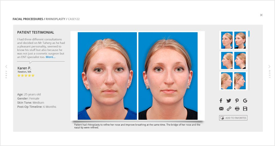 Before and After Gallery - Cosmetic Procedure